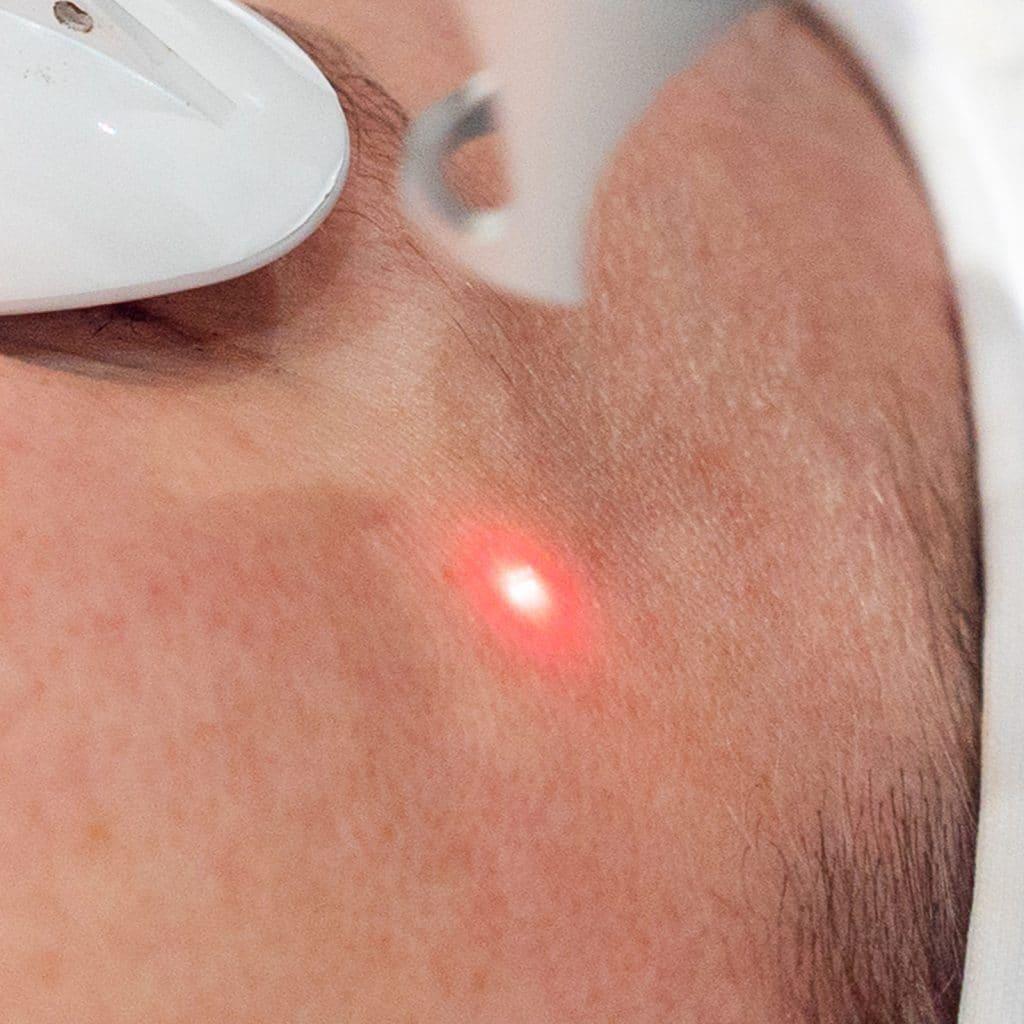 pico deep laser