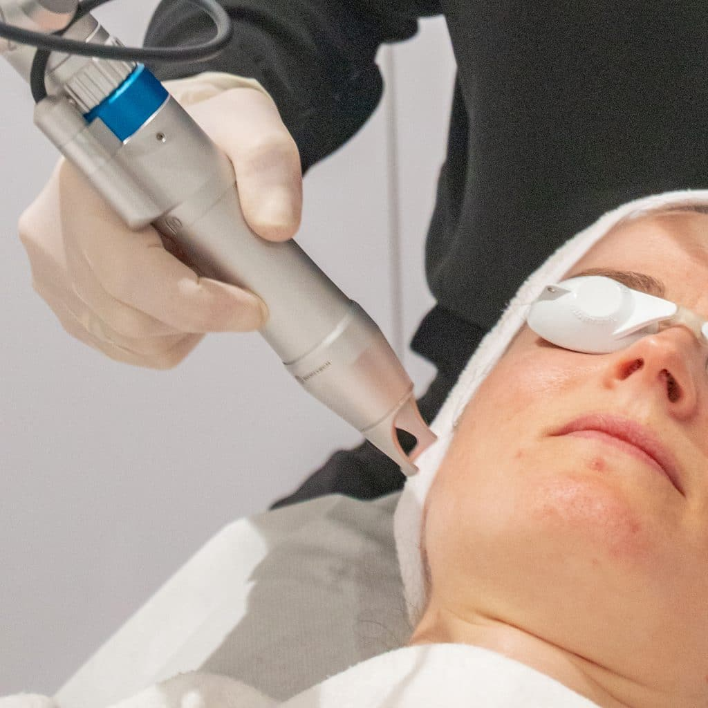 pico deep laser toning treatment