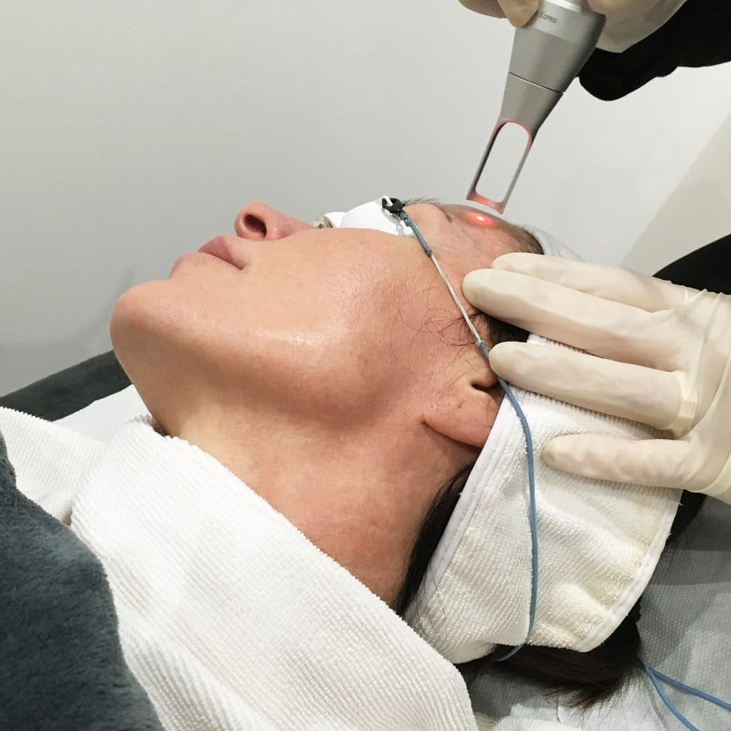 pico rejuvenation treatment