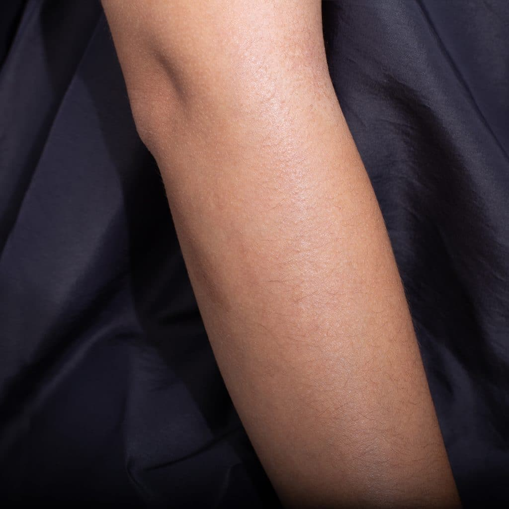 pico scar repair arm after