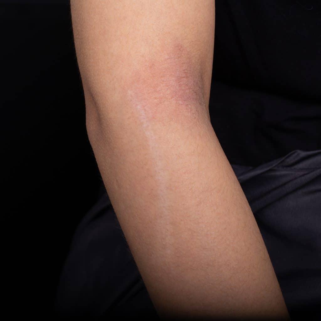pico scar repair arm before
