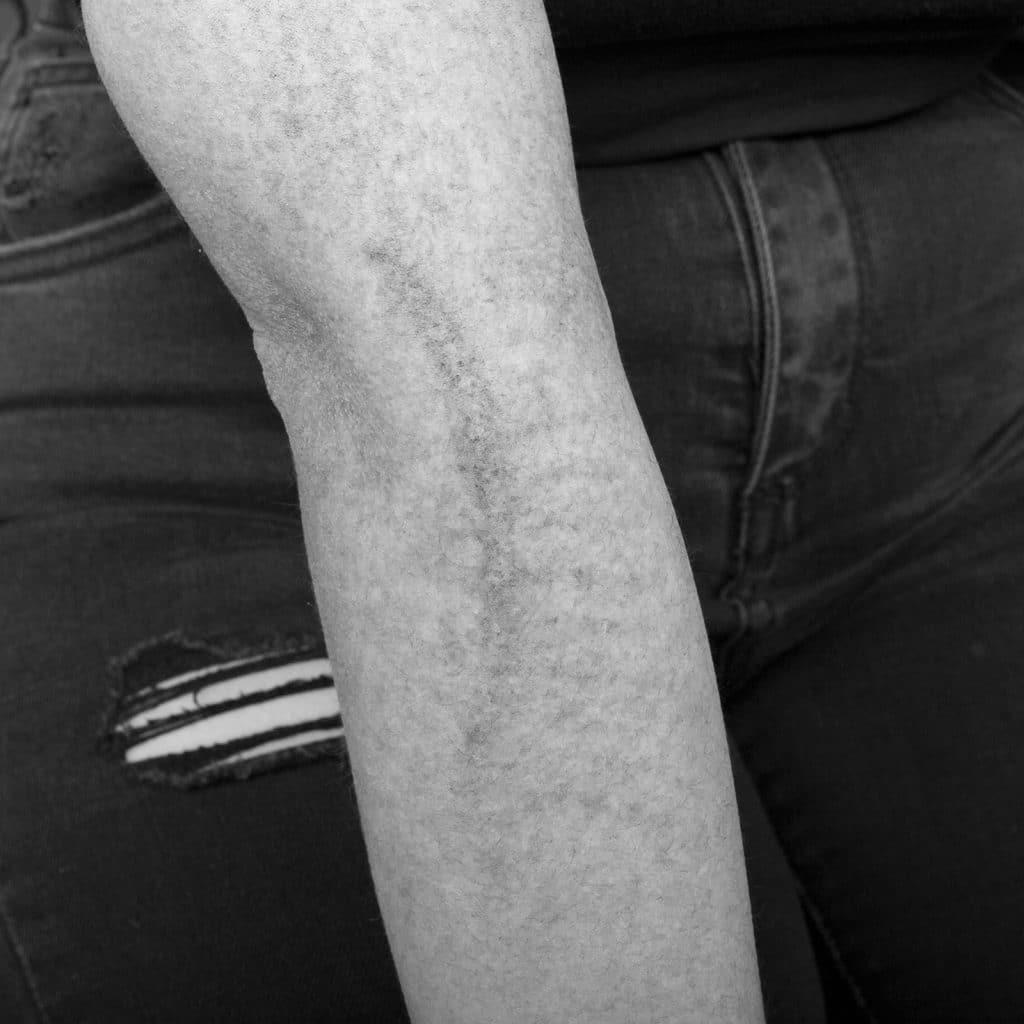 pico scar repair arm filtered before