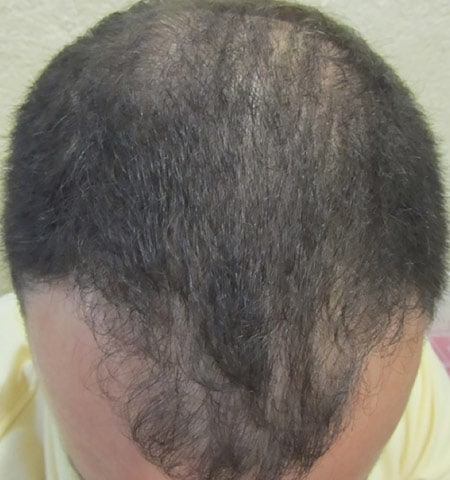 prp hair loss treatment after 1