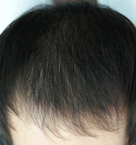 prp hair loss treatment after 2