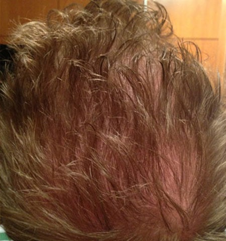 prp hair loss treatment after 3
