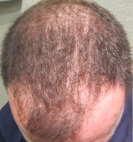 prp hair loss treatment before 1