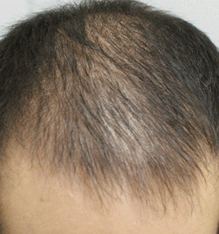 prp hair loss treatment before 2