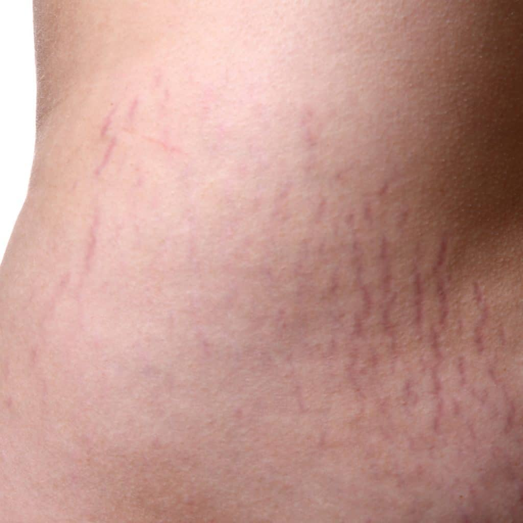 red stretch marks abdomen