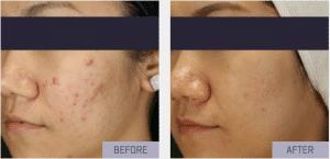 rf needling acne scarring cheek