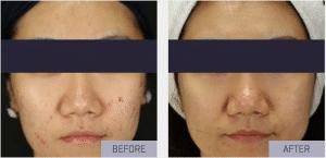 rf needling acne scarring face