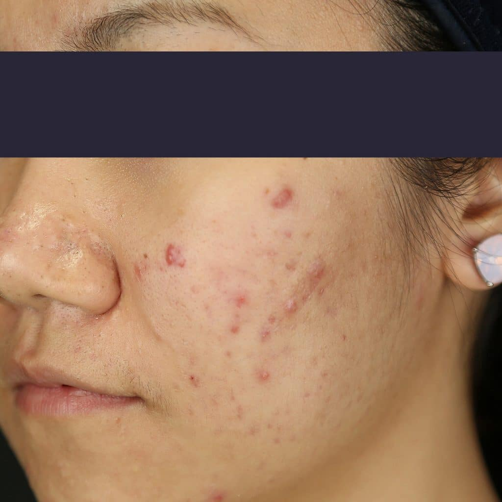 RF-needling cheek pre treatment