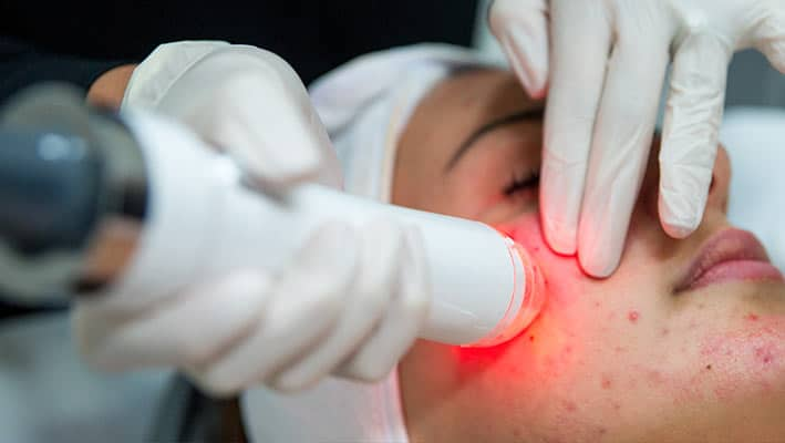 Non-invasive skin tightening treatment