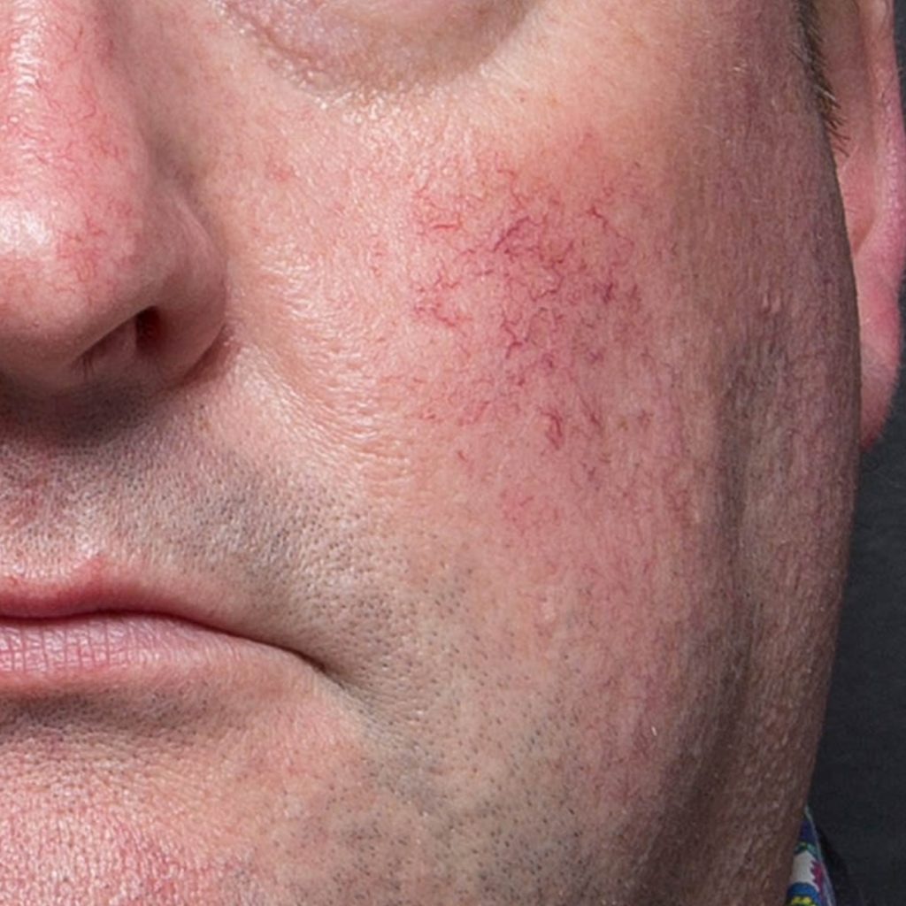 rosacea cheek before