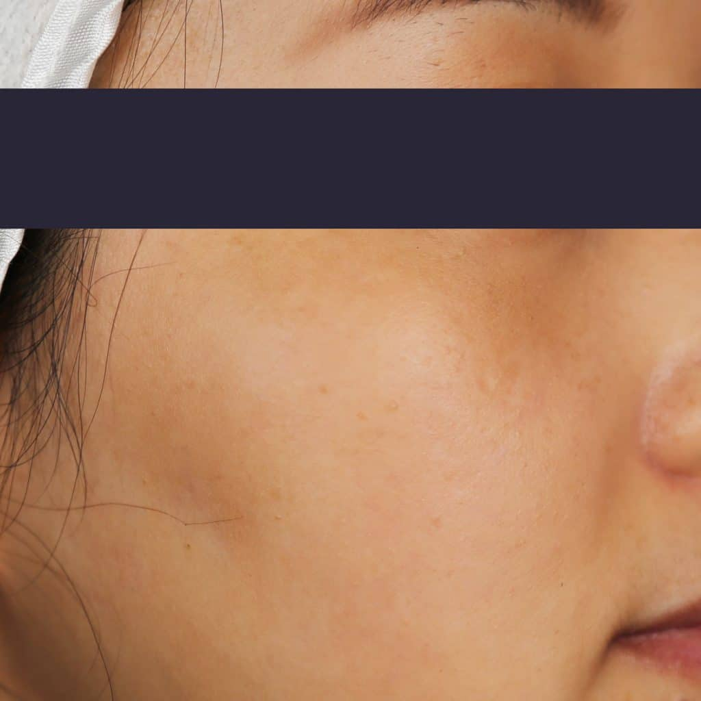 Facial Pigmentation Reduction