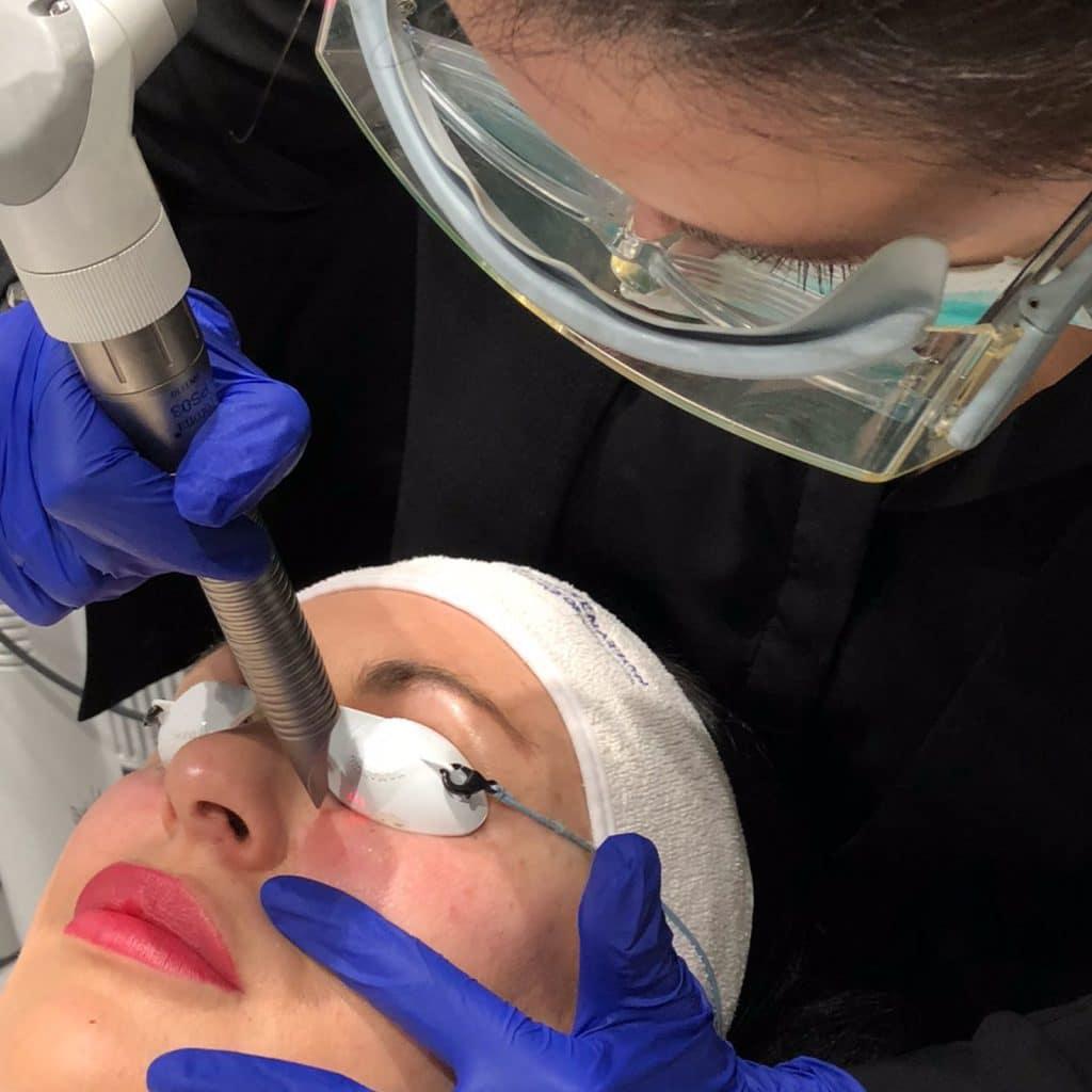 smootheye treatment