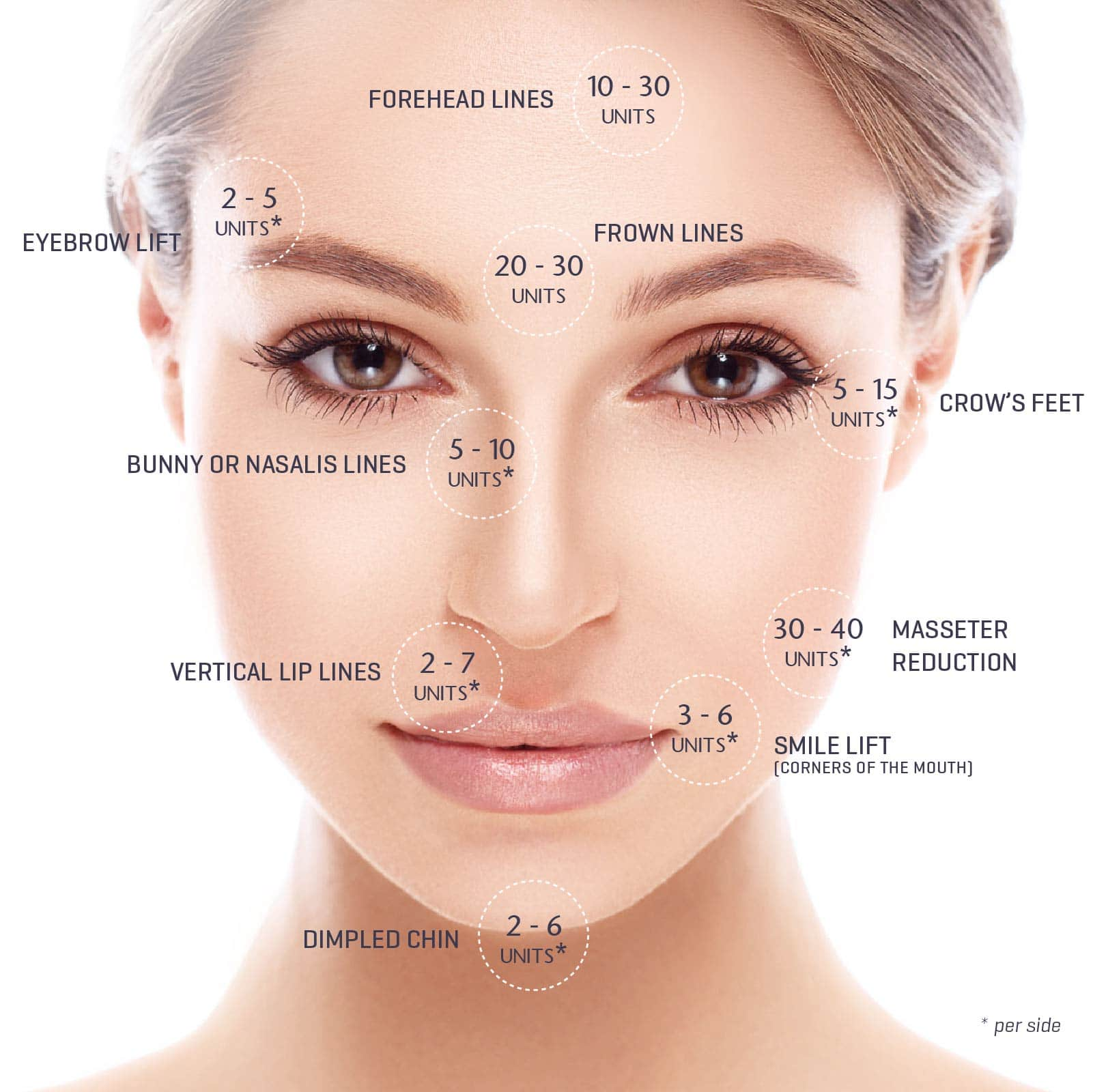 anti-wrinkle injections pricing, rejuvenation clinics of ... botox eye diagram