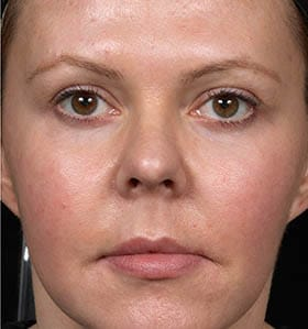 Thermage treatment face after