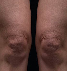 Thermage treatment knees after