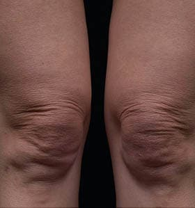 Thermage treatment knees before