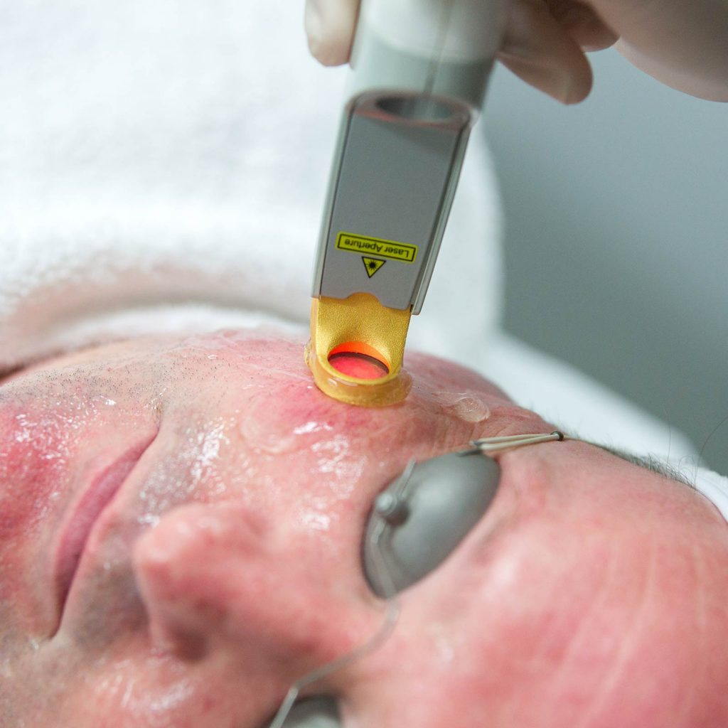 treatment excel v laser cheek