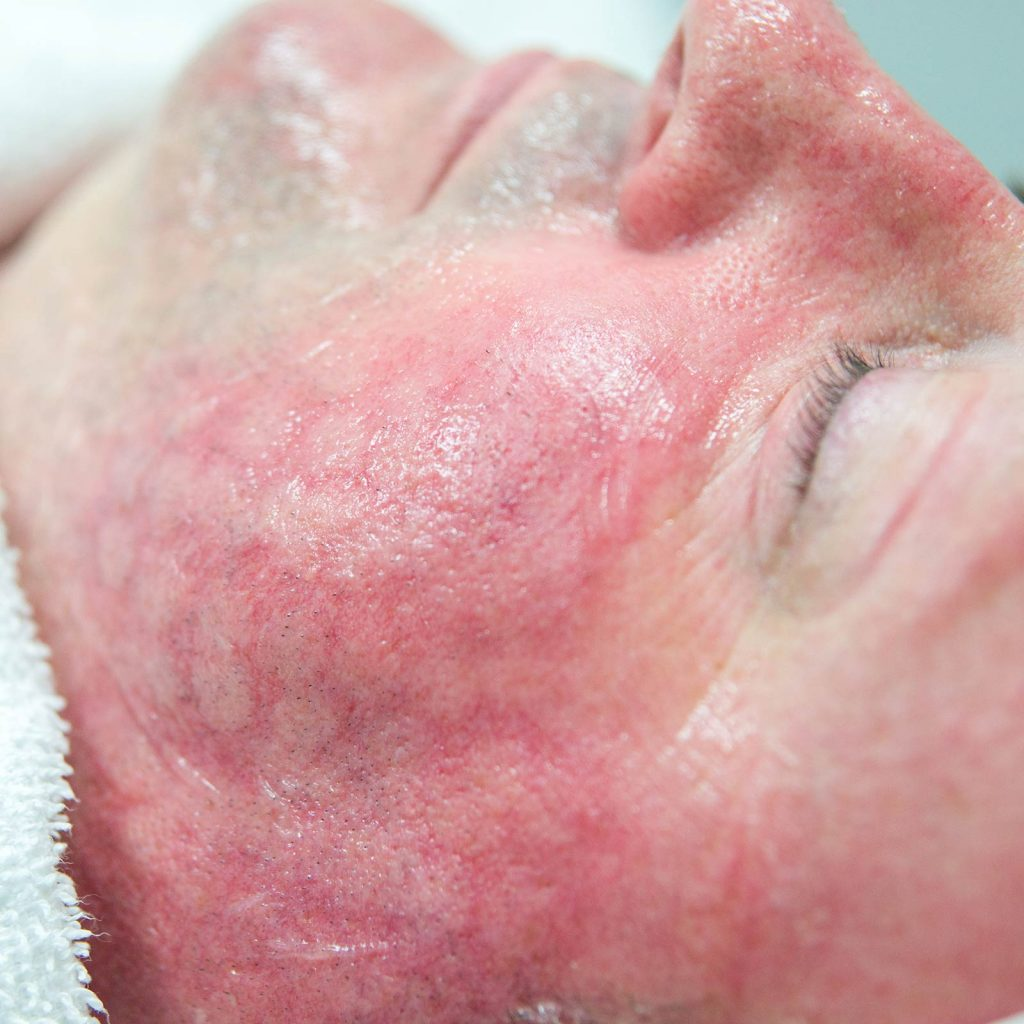 treatment excel v laser skin