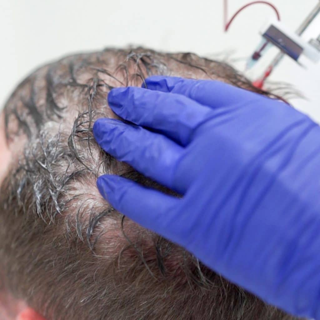 treatment prp for hair loss