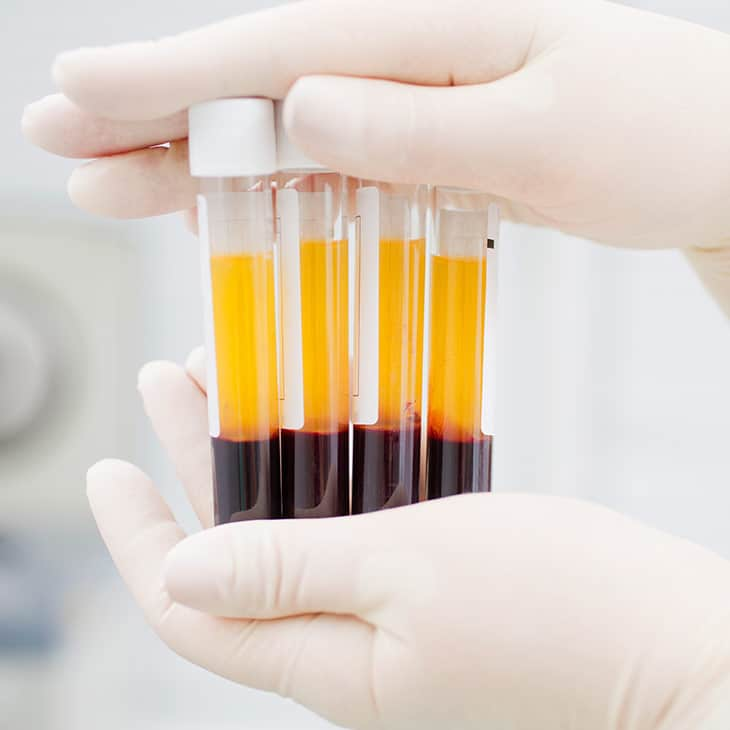 PRP in test tubes