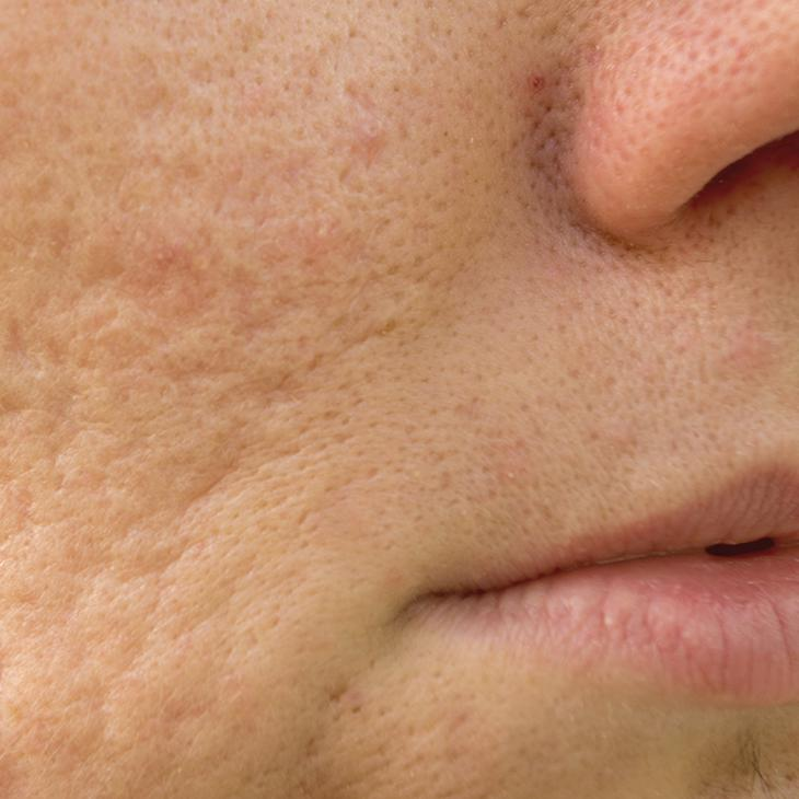 Acne scarring on face
