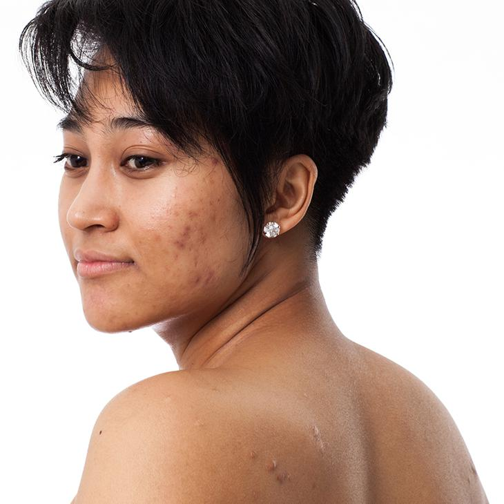 Acne treatment for Asian skin
