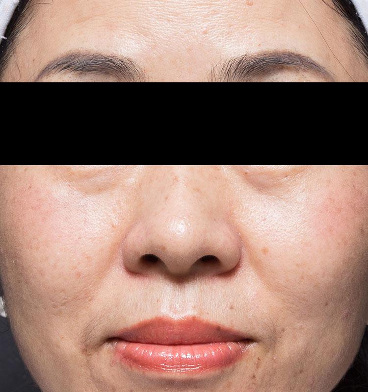 治疗后超声皮肤收紧亚洲脸