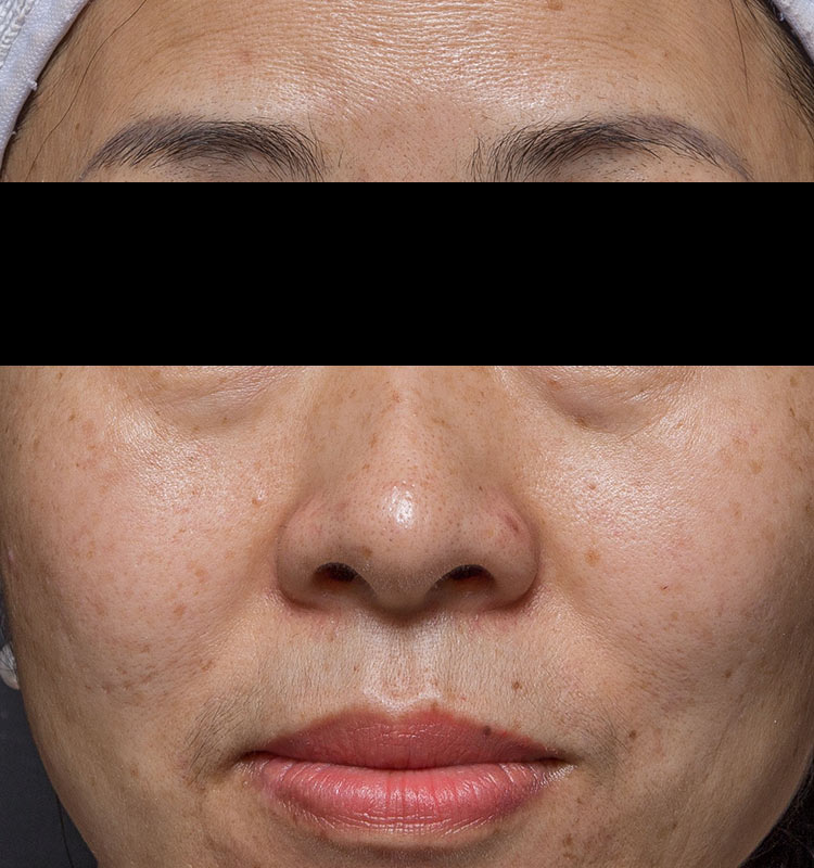 Ultrasound Skin Tightening asian face before treatment