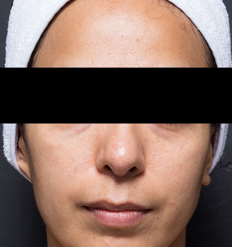 Ultrasound Skin Tightening face after treatment