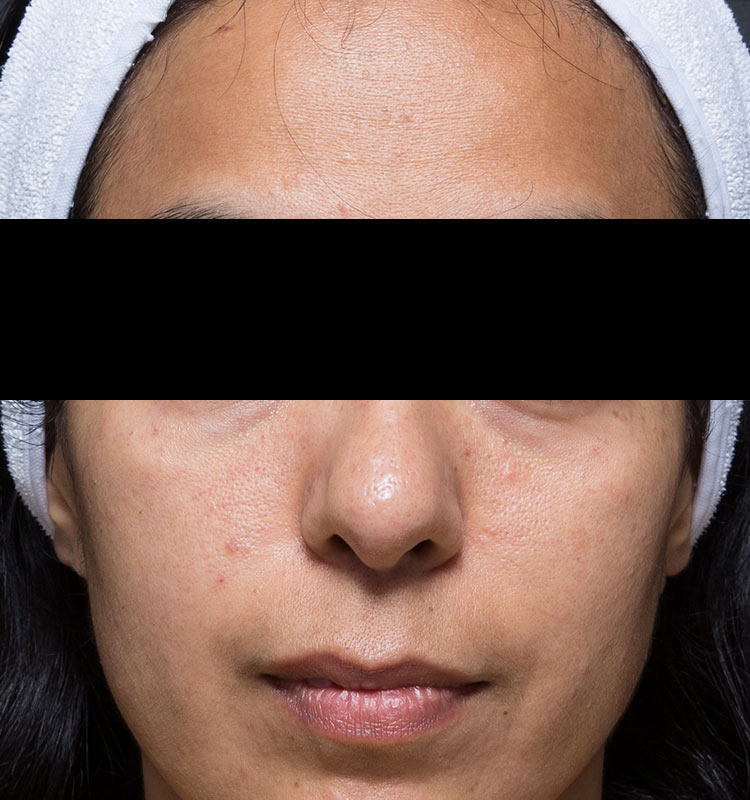 Ultrasound Skin Tightening face before treatment