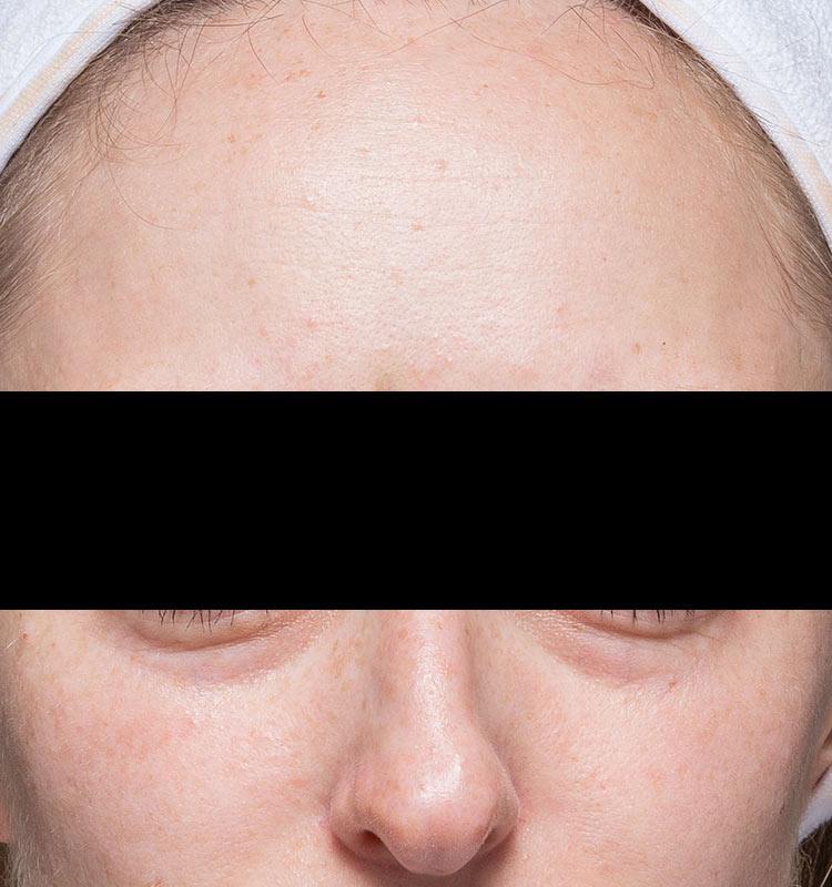 治疗前的超声皮肤收紧脸