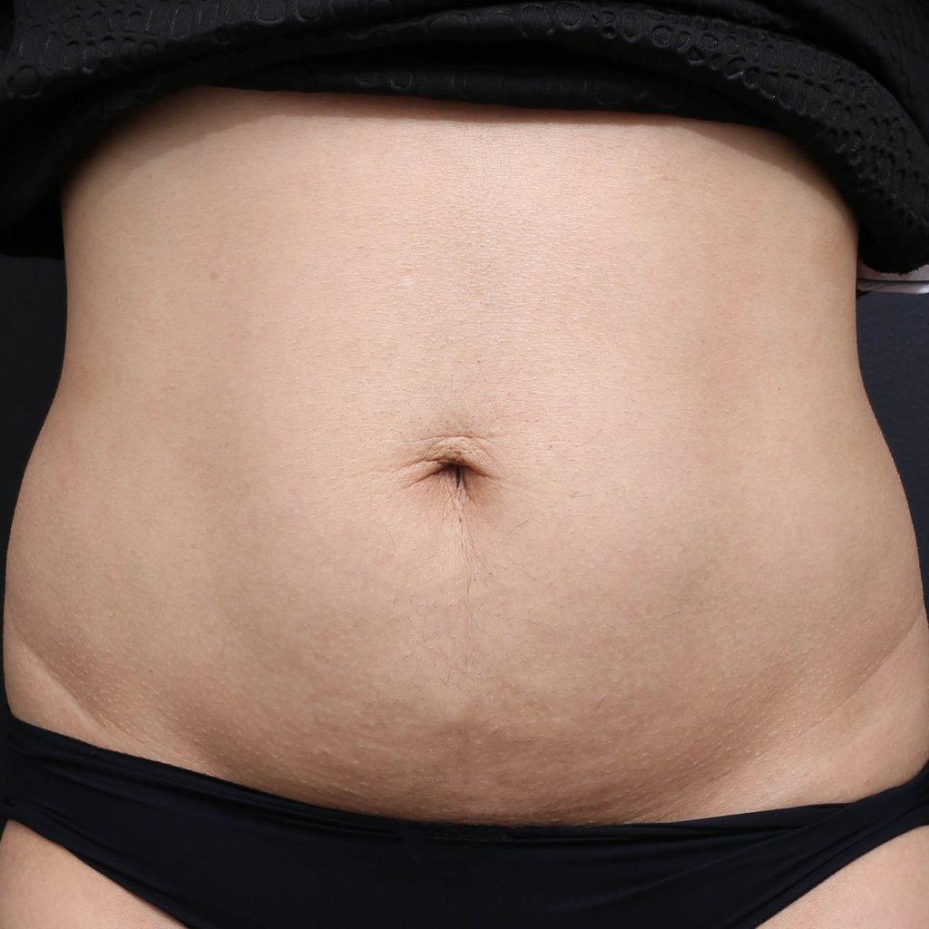 怀孕后用超声波收紧皮肤