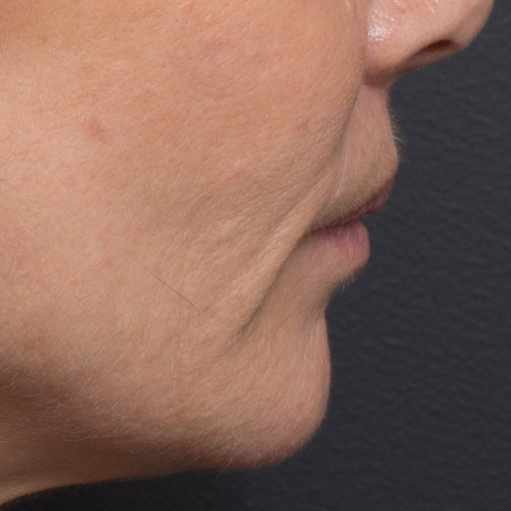 skintight ultrasound cheek after