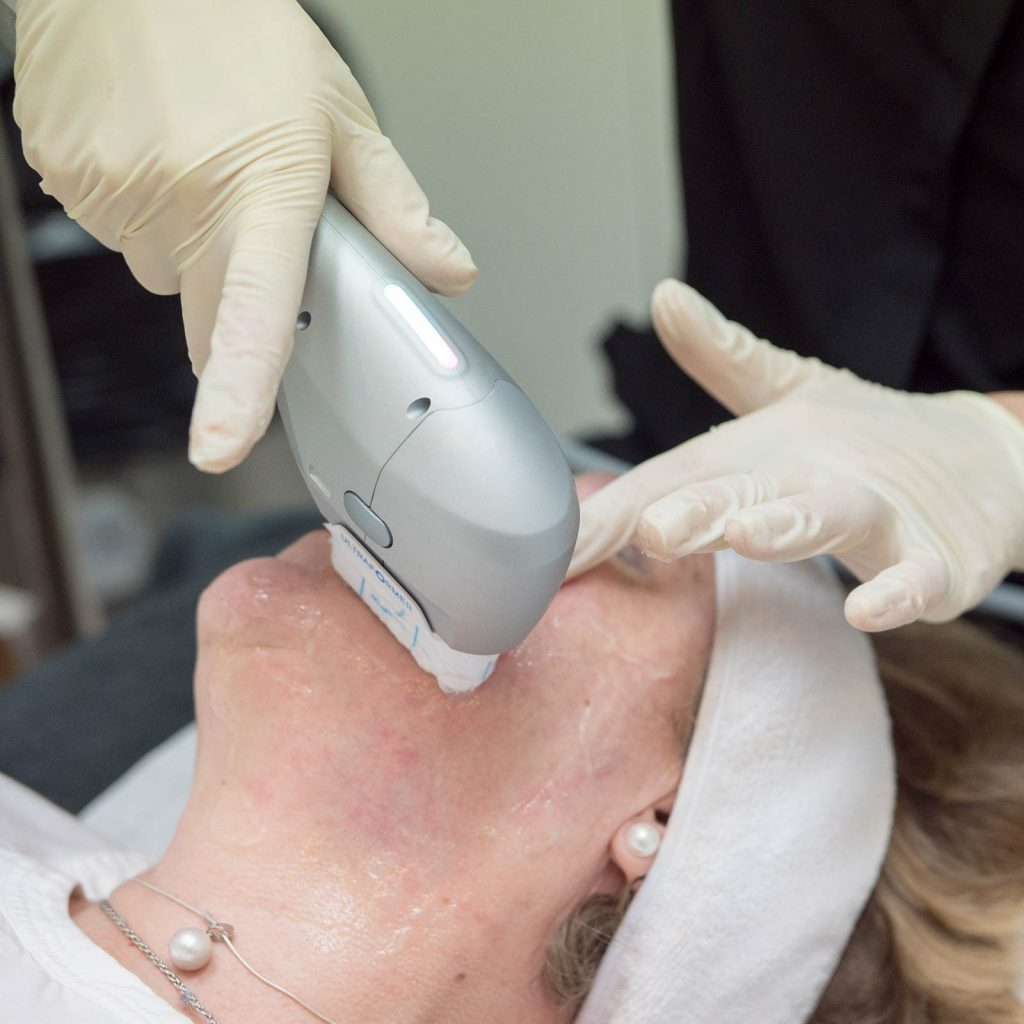ultrasound skin tightening SIDE FACE