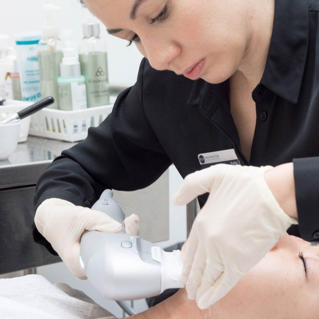 ultrasound skin tightening under chin 1